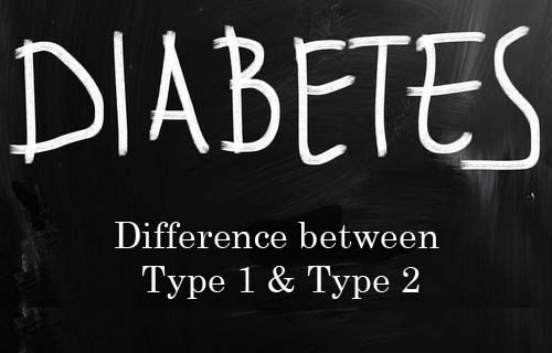 dissertation on diabetes research Recently published articles from diabetes research and clinical practice   accuracy of hematuria for predicting non-diabetic renal disease in patients with.