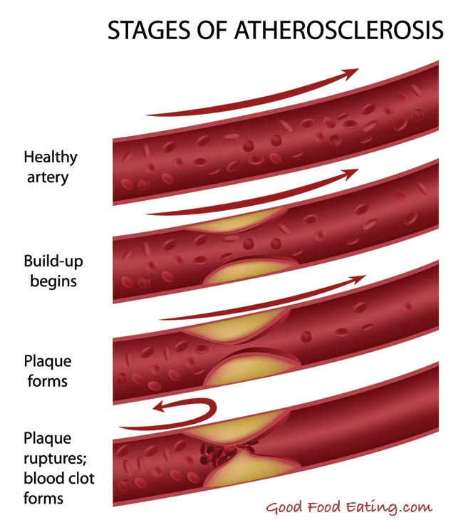what is atherosclerosis?, Human Body