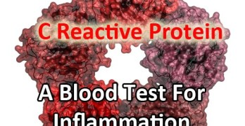 C Reactive Protein. A Blood Test For Inflammation In The Body